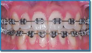 ortodontia1